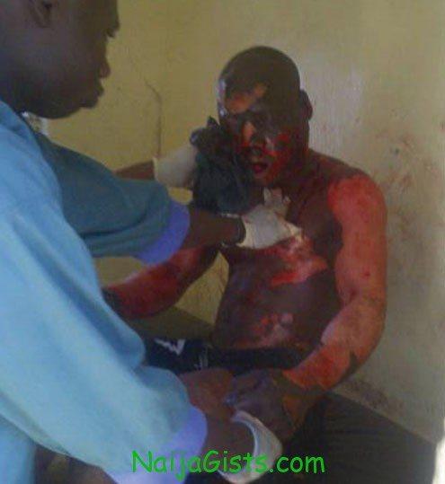 Kaduna bomb blast victims