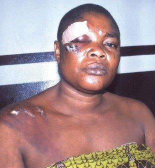 woman beaten missing manhood lagos