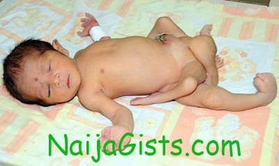 baby born with six legs in pakistan