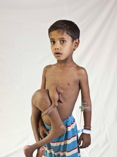 deepak 8 limbed boy in india