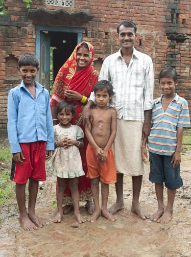 deepak india parasitic twins