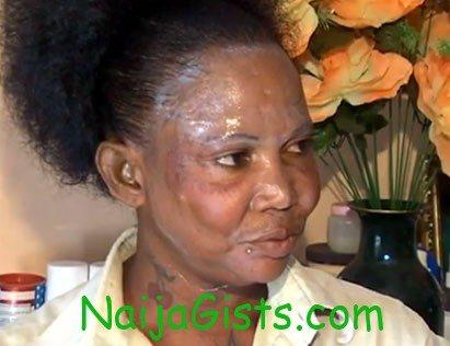 skin lightening cream nigerians