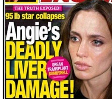 angelina jolie liver disease