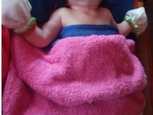 baby born missing skull cambodia