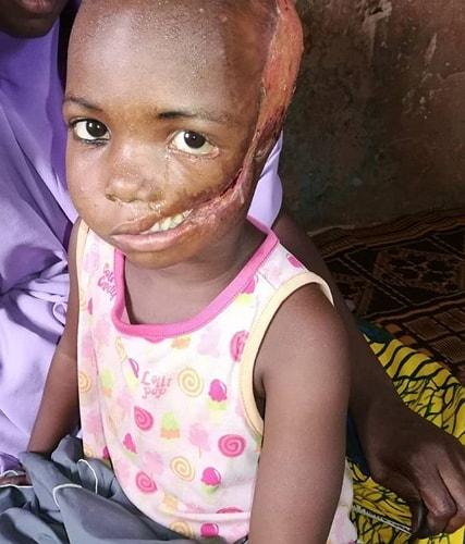 doctor puts iv injection head girl kaduna