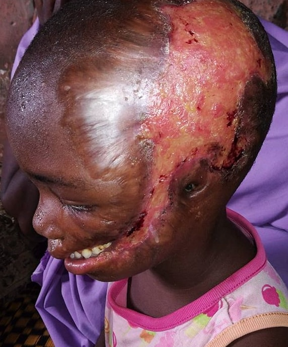 doctors put iv girl head kaduna