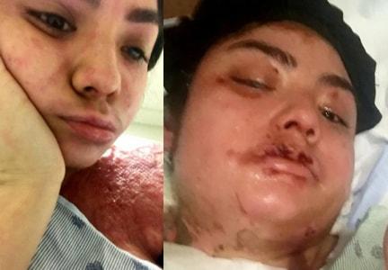 dallas girl attacked acid dating black