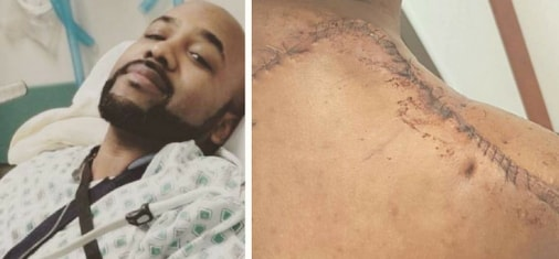 banky w cancer free