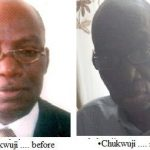 nigerian lawyer diagnosed with colon cancer