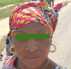woman bites neighbour eye ikorodu lagos