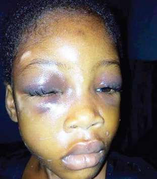 kaduna couple attack girl defecating bed