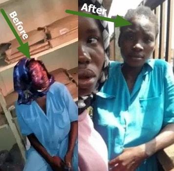 pregnant woman fake burn victim