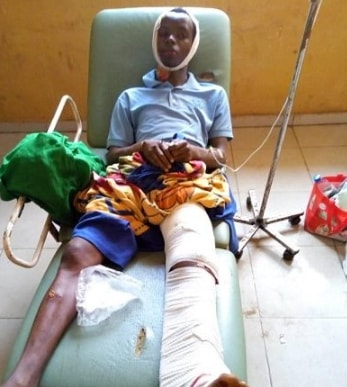 sars brutality victim dies