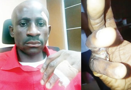 taxify driver tortured by SARS officer