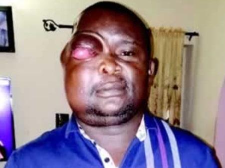 nigerian man 5 million brain surgery india