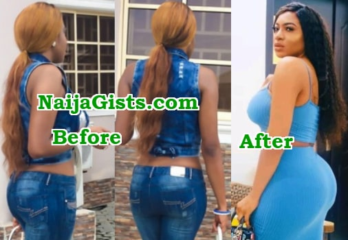 chika ike brazilian butt lift surgery