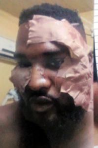 wizkid bodyguard attacked club dna
