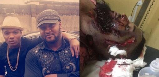 wizkid bodyguard stabbed club dna