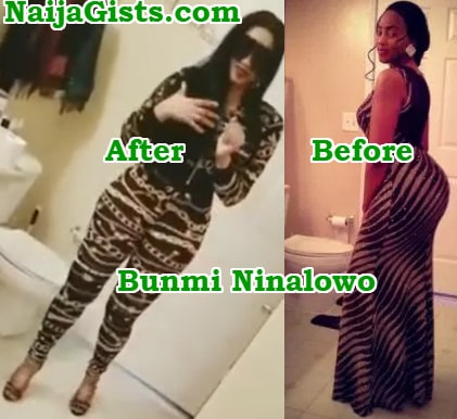 bunmi ninalowo bleached skin butt implants