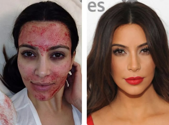 vampire facials before and after