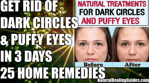 dark circles under eyes natural treatment