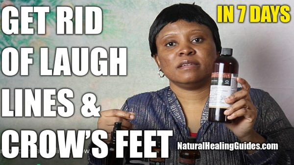 natural treatment home remedies for laugh lines and crows feet