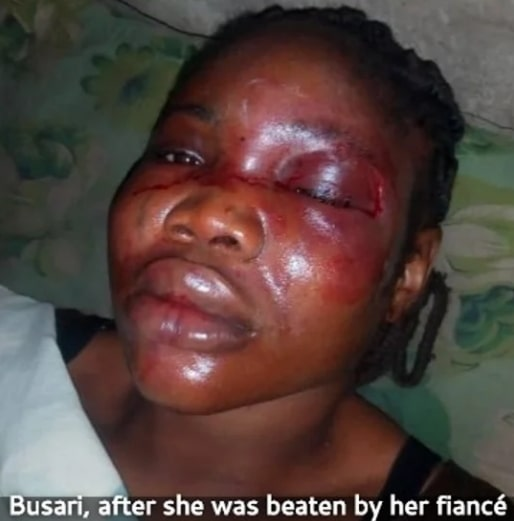 woman beaten by fiance