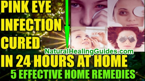 how to cure eye infection in 24 hours