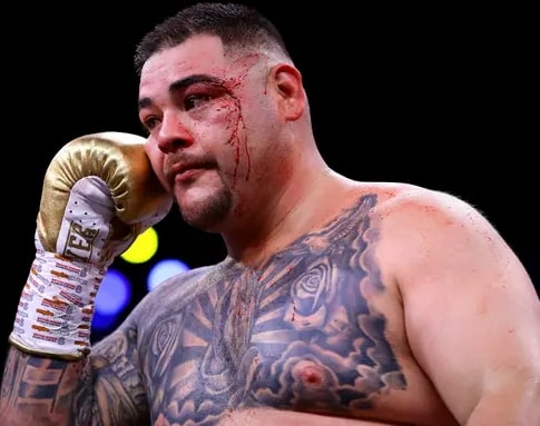 ruiz face bleeding photos