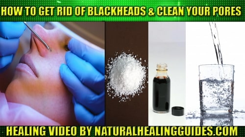 How To Get Rid Of Blackheads clean pores home
