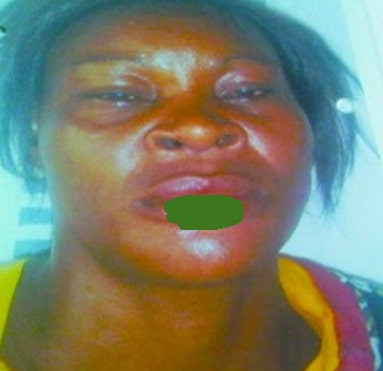 woman bites off neighbour lip mushin lagos